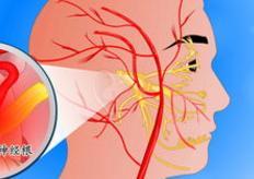 三叉神经痛的最佳治疗方法是什么